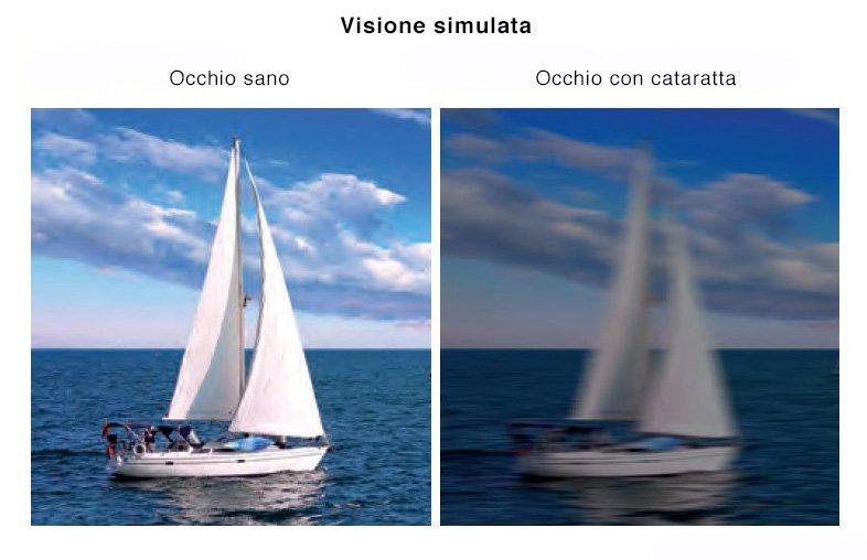 Cataratta Visione simulata